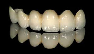 contour_specialists_connected_teeth